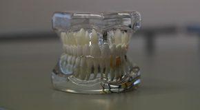 Prothèses dentaires. Des prix enfin plafonnés !