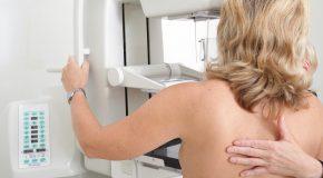 Cancer du sein. Un dépistage individualisé à l'essai