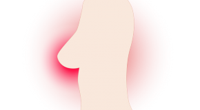 Cancer du sein : les progrès constants de la radiothérapie