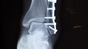 Quand le kinésithérapeute provoque une fracture du fémur