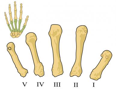 # ostéoporose